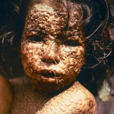 SMRTONOSNIH 10: Ove bolesti su odnijele najviše života u ljudskoj istoriji